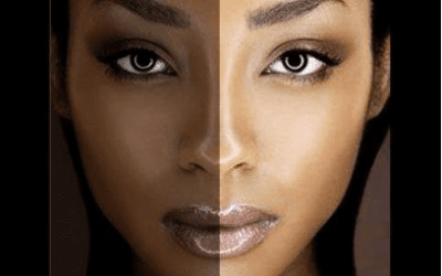 Skin Bleaching: Cause, Effects and Alternatives