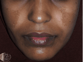 Melasma – A closer look